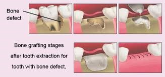 Bone Grafting Implant Dentist In Brooklyn Ny